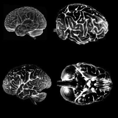 Кисти - Мозги