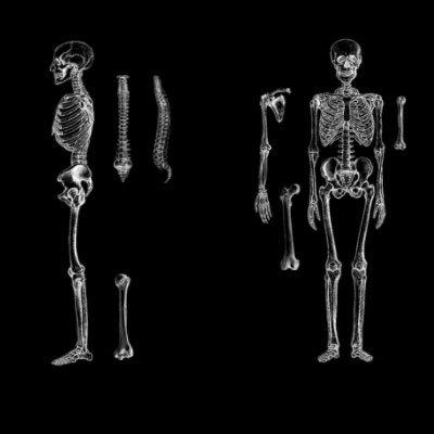 Кисти - Анатомия
