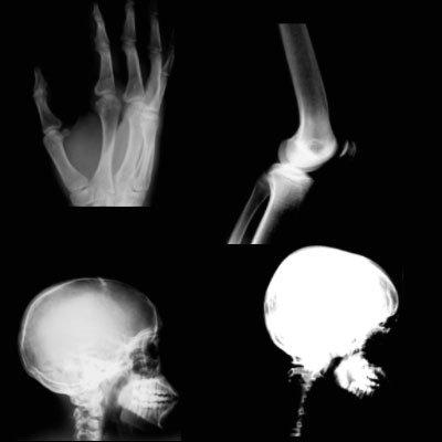 Кисть для фотошопа - рентгеновские снимки
