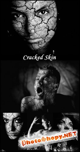 Cracked Skin - Stock Photos